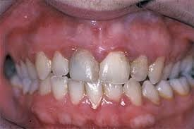What to Do In Case Of Gingivitis_1